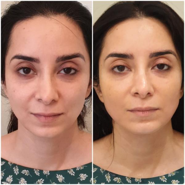 Skin Treatment Results Jacqueline Parker